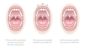 elevoplasty procedure explanation