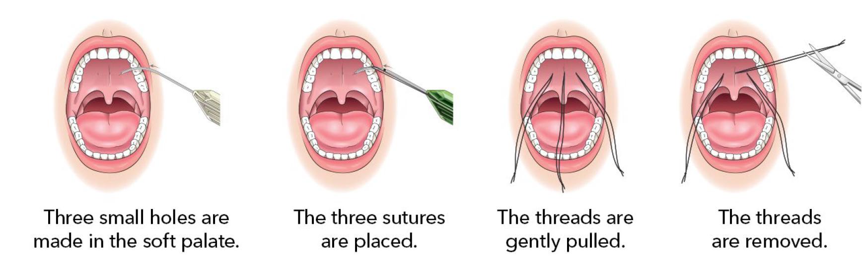 elevoplasty procedure steps