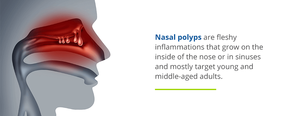 what are nasal polyps